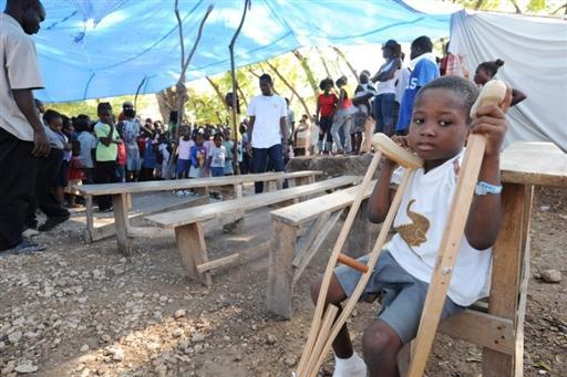 Salvadoran Hands Will Bring Hope to Haitian Earthquake Amputees