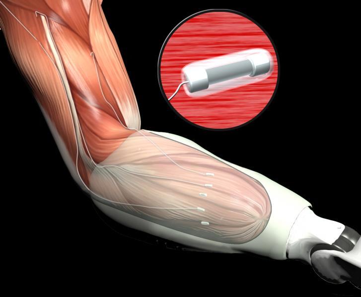New Nerve and Muscle Interfaces Aid Wounded Warrior Amputees